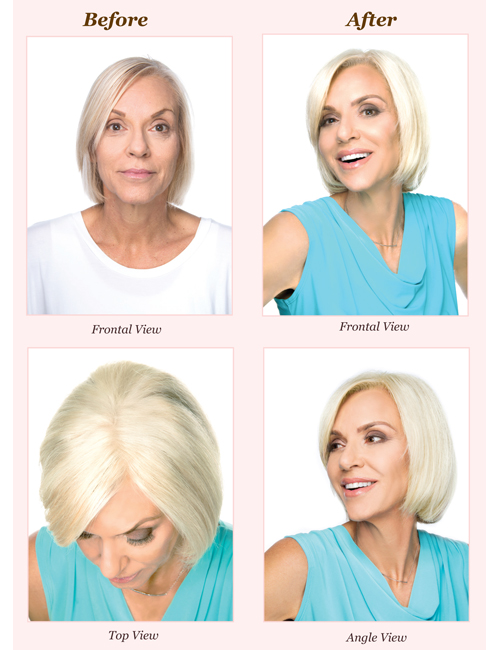 Salon-Ambiance-Hair-Couture-Hair-Pieces_Natural-Top-Medium-Before-and-After