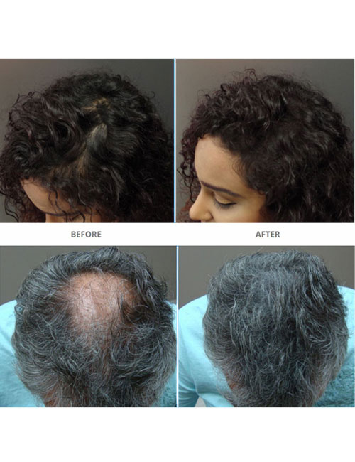 Surethik-Before-and-After-1
