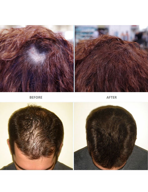 Surethik-Before-and-After-2